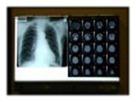 medicdirect X-Ray